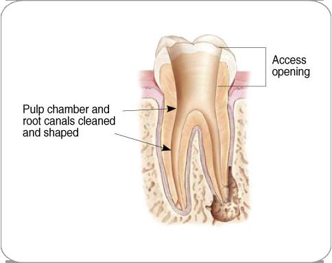 Endodontic Specialists, P A  > Endodontics > Procedures > Endodontic
